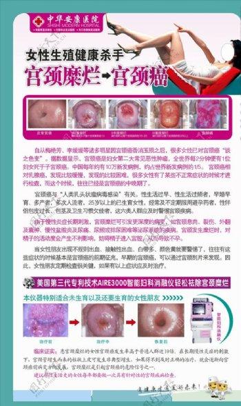 妇科疾病宫颈糜烂癌易拉宝展架